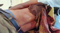 Serang Polisi Pakai Sajam, Jairin Siagian Dihadiahi Dua Butir Peluru Panas
